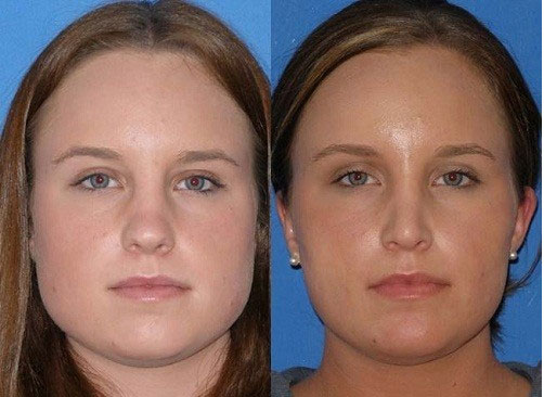 20 Things You Never Knew About Botox Косметология